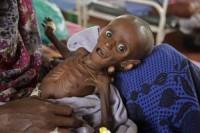 somalia desnutricion